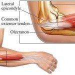 tennis-elbow-vs-golfers-elbow-150x150-1